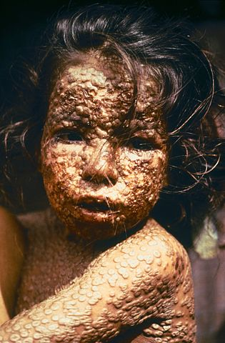 A child with smallpox; the cost of unscientific medicine. This is why science-based medicine matters.