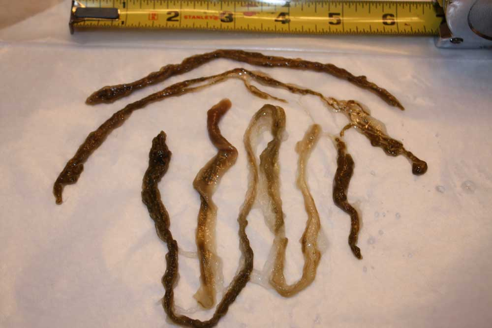 Rope Worms: C'est la Merde – Science-Based Medicine