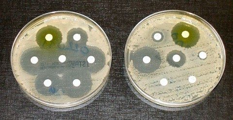 Antibiotic sensitive (left) and resistant (right) bacterial colonies. They probably shouldn't be that close together.